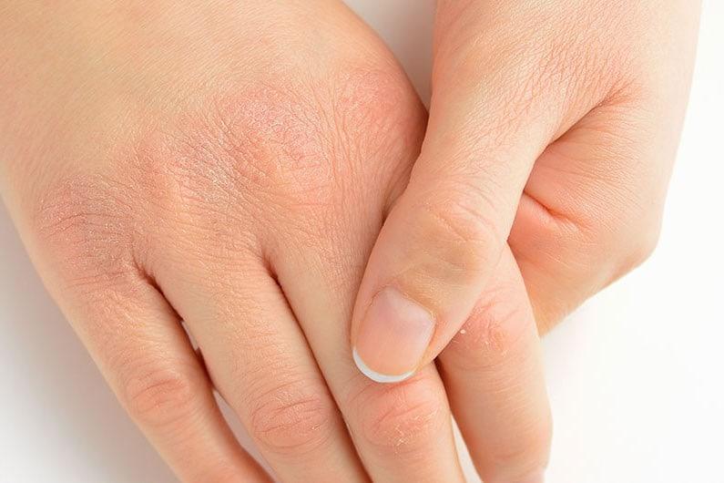 Những sai lầm sử dụng bình nước nóng vào mùa đông gây hại cho da